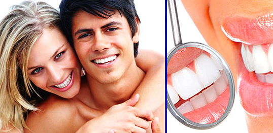 Dental whitestrips funziona