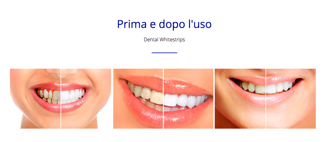 dental whitestrips opinioni